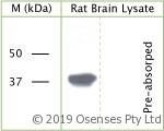 sheep antibody to phospho s41 of axonal membrane protein gap 43